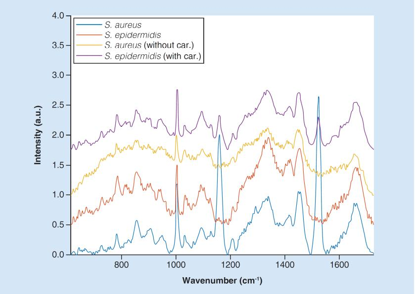 Examples of Raman spectra